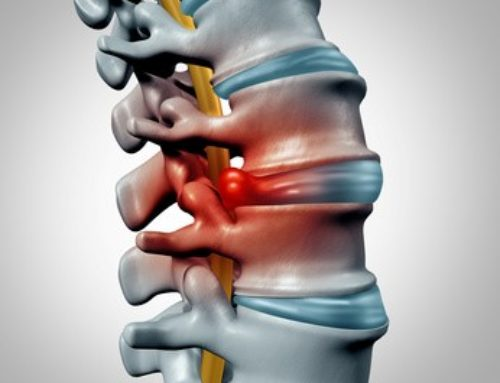 Sciatica and Herniated Disc Relief